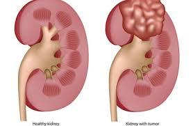 Ung thư thận nguyên nhân và cơ chế bệnh sinh